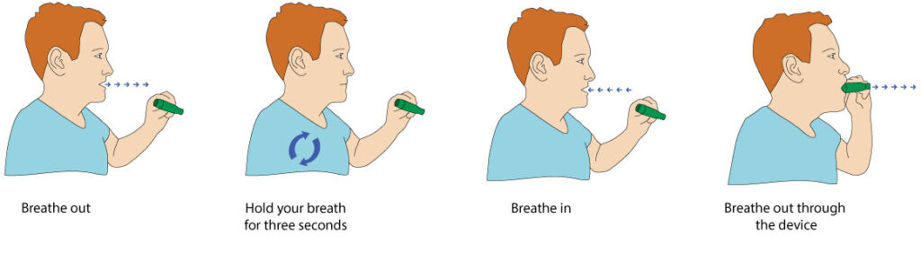 Figure 5. The breathing manoeuvre used for leaving a sample with the Breath Explor sampling device